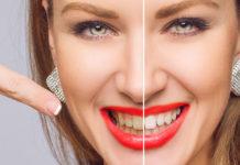 Wybielanie zębów magic white – czy warto się skusić?
