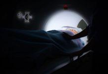 Rodzaje nowotworów i sposoby leczenia